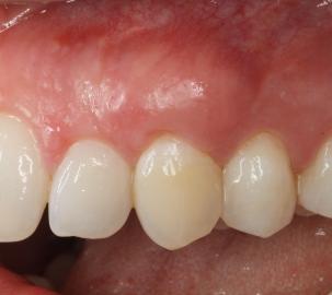 na tandvleeschirurgie