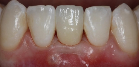1 implantaat vervangt 2 melktanden
